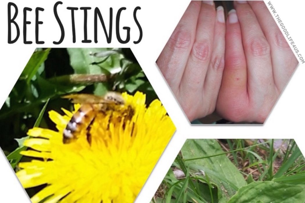 How to Treat Bee Stings Home Remedy