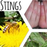 How to Treat Bee Stings: Home Remedy